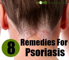 Psoriasis is a complex, chronic, inflammatory, autoimmune disease that typically affects the skin and the joints. Psoriasis generally develops as patches of thick, red, dry,…
