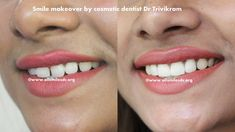 Smile makeover by expert cosmetic dentist Dr Trivikram.Cosmetic dentistry/Smile makeover is generally used to refer to any dental work that improves the appearance of teeth, gums and/or bite. Read more http://www.allsmilesdc.org/cosmetic-dentistry/ . #SmileMakeover #CosmeticDentist #Bangalore