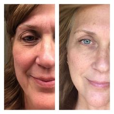 Renu 28 works! The skin renews itself every 28 days!  Want to know more:  Contact me, yourhealthmattersmost@yahoo.com