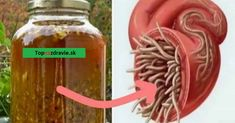 Mnohí experti na zdravie zcelého sveta súhlasia, že ide o najsilnejšie prírodné antibiotikum, aké si môžete sami doma pripraviť. Určite ho vyskúšajte – dokáže si poradiť stakmer každou infekciou vľudskom organizme anavyše usmrcuje aj parazity, ktoré sa môžu nachádzať včrevách či iných miestach vtele. Čo všetko dokáže toto prírodné antibiotikum Okrem bakteriálnych infekcií aparazitov účinkuje […]