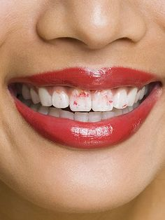 How to Prevent Lipstick From Getting On Your Teeth.