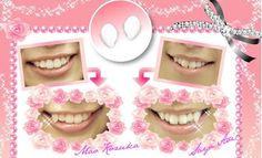 Japan Trend Shop | Magical Tooth Yaeba Snaggleteeth. why oh why would anyone want a snaggletooth?
