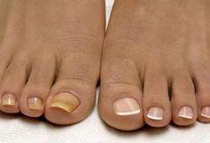 Почему врачи молчат? Смесь, от которой исчезает грибок на ногах и руках. Мгновенный результат!