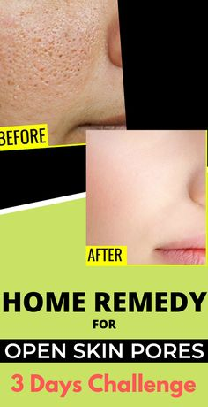Open or large pores are one of the main reasons for acne or pimples. In this article, I will share some natural remedies to minimize pores on the face. Beauty Care, Beauty Skin, Beauty Hacks, Diy Beauty, Homemade Beauty, Beauty Ideas, Face Beauty, Beauty Guide, Beauty Secrets