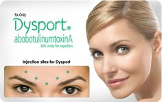 Dysport is an injection used to temporarily improve the look of moderate to severe frown lines between the eyebrows (glabellar lines) without changing the look of your whole face. The untreated facial muscles still work normally, allowing you to freely show facial expressions, such as smiling, in untreated areas. Dysport is a purified formulation that has been shown to deliver temporary improvements in moderate to severe frown lines, even with repeat treatments.