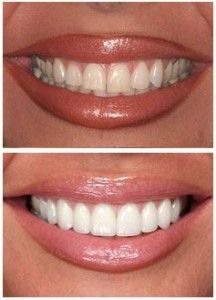 Dental crowns are needed when teeth start to wear down, crack or break. This is due to a variety of factors such as teeth grinding, an improper bite, fillings, tooth decay and age. Teeth Makeover, Smile Makeover, Veneers Teeth, Dental Veneers, Perfect Teeth, Perfect Smile, Composite Veneers, Beautiful Teeth, Teeth Shape