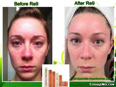Before and After Arbonne's RE9 Skincare.