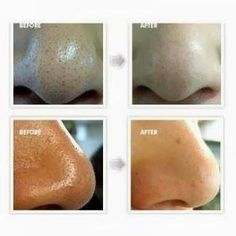 How to Make a Face Mask to Remove Blackheads: 2 egg whites whisked plus 1tsp lemon juice. Let harden 15-20 mins. Peel off. | Exclusive from Deluxspa
