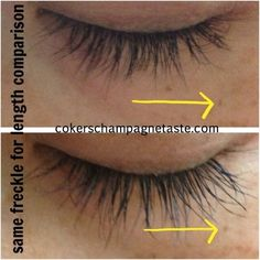 Eyelash serum •Bnip Eyelash serum  •PICS ARE REAL RESULTS FROM REAL CUSTOMERS…