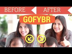 How To Instantly Cover Bald Patches And Thinning Hair | Gofybr Product Review