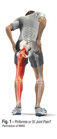 What's the difference between Sacroiliac Joint pain and Piriformis Syndrome pain? Find out from expert Erik Dalton, outlining how massage therapy can help both.
