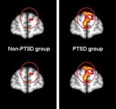 brain scans for Ptsd | combat photos, fMRI revealed differences in activation in the brain ...