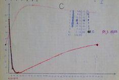 History of spaced repetition | SuperMemo.com Spaced Repetition, Line Chart, Diagram, History, Historia