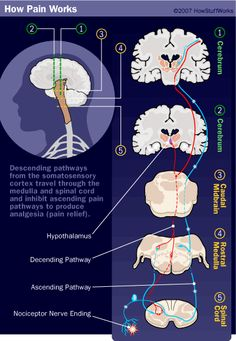 This shows how pain works in your body.