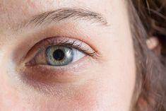 Les cernes sont les ennemis redoutés d'un visage sain et reposé, découvrez des remèdes naturels, accessibles et efficaces d'anti cerne