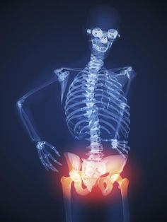The Relationship Between Obesity and Osteoarthritis: Obesity Can Cause Arthritis Pain of the Hips