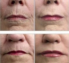 Natural ways to get rid of wrinklesEven though they say wrinkles make you wiser, there are many ways to look wiser without the wrinkles that are natural, there is no need to buy expensive anti-agi...