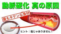 高血圧に最もキケンな食材!動脈硬化(カチコチ血管)を予防する3ポイント