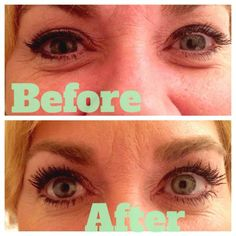 Michele Davis' lashes before and afterwards. I am absolutely amazed!! It truly is like you are wearing false lashes, they are so long. Order here: https://www.youniqueproducts.com/MicheleDavisrap/   - Younique - Uplift. Empower. Motivate.