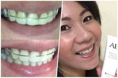 Morning feedback from my own clients.😀😁 Parehong nagustuhan ang galing ni Pm for your order📲 White Teeth, Products, Manualidades, Gadget