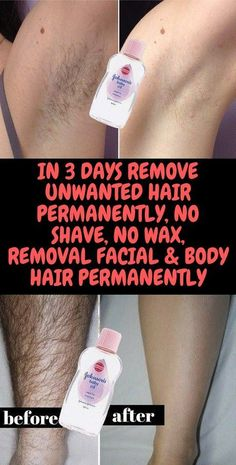 Today I will share an amazing unwanted hair removal treatment with which you can remove facial and body hair permanently. This method is easy, effective and natural. Natural Remedies For Allergies, Natural Headache Remedies, Natural Remedies For Anxiety, Herbal Remedies, Health Remedies, Remove Unwanted Facial Hair, Hair Removal Remedies, Hair Removal Cream, Best Facial Hair Removal