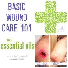 Essential Oils for Basic Wound Care
