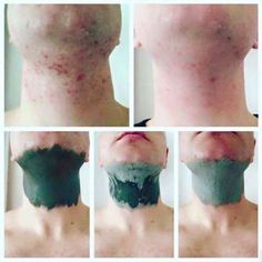 Glacial Marine Mud Mask *Great for blackheads and pores * Helps clear acne and spots *For both men and women Leaving skin, Smooth. Homemade Acne Treatment, Oily Skin Treatment, Scar Treatment, Skin Treatments, Epoch Mud Mask, Marine Mud Mask, Glacial Marine Mud, Skin Care Regimen, Foundation