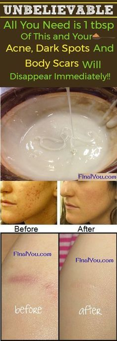 This homemade MAGIC face mask is the only mask you'll ever need, especially if you have spots, acne scars, and/or wrinkles. This mask is tried, tested, and TRUE! I've tried thousands of different masks over the years, and this one is by far the most amazing because it actually works in minutes! So here's the …