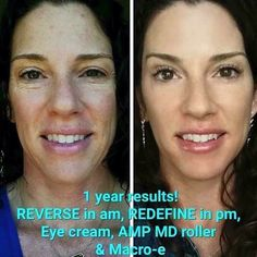 Dark spots and lines gone!  Foundation freedom, contact me for your foundation freedom!
