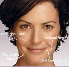 facial monterey dental Aesthetics institute