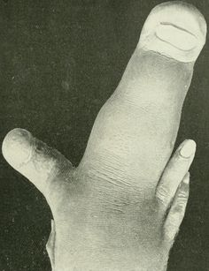 Elephantiasis of the middle finger, from Anomalies and curiosities of medicine, 1900