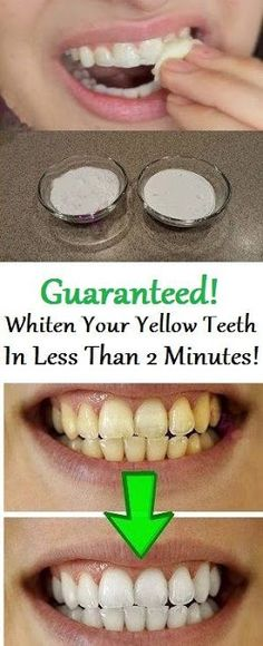 GUARANTEED! WHITEN YOUR YELLOW TEETH IN LESS THAN 2 MINUTES! Cocnut oil + baking soda