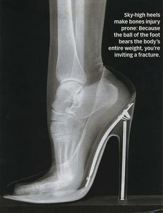 And that's why it hurts…glad my heels aren't super high!