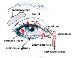 Dry Eye Syndrome via http://www.dambrosio-eye-care-boston.com/dry-eyes.html