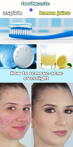 Toothpaste, aspirin and lemon juice form a great anti-acne paste which is applied over the areas of acne then they will easily help you to get rid of acne overnight. Does Toothpaste Get Rid Of Pimples Back Acne Treatment, Natural Acne Treatment, Overnight Acne Treatment, Acne Treatments, Home Remedies For Pimples, Natural Acne Remedies, Younique, Pimples Overnight, How To Get Rid Of Pimples