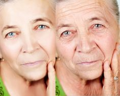 How To Deal With Wrinkles Are Using Some Home Remedies Treatment