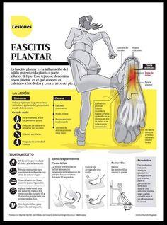 Fascitis plantar: Síntomas, causas y tratamiento.