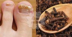 Incrível! Cravo-da-índia: um remédio natural que será bem proveitoso para você! - # #cravo-da-índia #Extrato #fungos #micoses #óleo #tintura #unhas