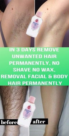 Remove Unwanted Hair Permanently In Three Days, No Shave No Wax, Removal Facial & Body Hair Permanen Chin Hair Removal, Permanent Facial Hair Removal, Underarm Hair Removal, Electrolysis Hair Removal, Hair Removal Remedies, Hair Removal Methods, Hair Removal Cream, Natural Hair Removal, Laser Hair Therapy