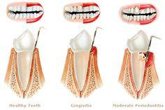 La #periodontitis es una enfermedad que lleva a la pérdida gradual de los tejidos de soporte del diente: hueso, ligamento periodontal y cemento.Al igual que la #gingivitis, la causa principal es la acumulación de placa entre la encía y el diente.