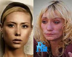 Reasons to NEVER take meth. An America's Next Top Model contestant Jael in 2007 & today, 5 years later, after becoming a meth addict. Gonna say she's probably got meth mouth too. Meth Addiction, America's Next Top Model, Acne Scar Removal, The Ugly Truth, After Life, Acne Scars, Plastic Surgery, Beauty, Fotografia