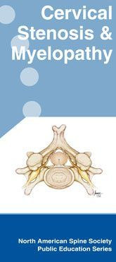 Cervical Stenosis, Myelopathy and Radiculopathy - This is a downloadable brochure with some very good info in it