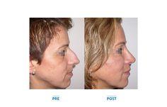 Rinosettoplastica  Chirurgia Estetica Dalmazia Michele Pascali - Roma - Plastic surgery makeovers