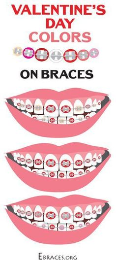 braces color combinations for valentine's day                                                                                                                                                                                 More