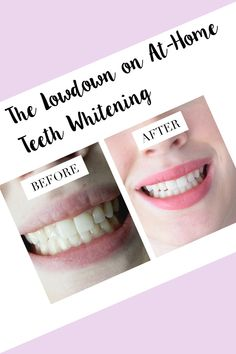 All about at-home, professional grade teeth whitening #beauty #smile #teeth