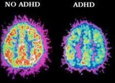 Adult ADHD Identity   What does it mean to have adult ADHD? Does it make us who we are? Who would we be without it? Does adult ADHD affect our identities?    www.HealthyPlace.com