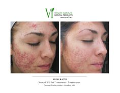 This patient had a series of 3 VI PEELS  #vipeel, #skincare, #acne