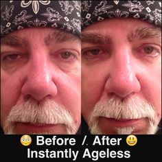 Results after using Instantly Ageless! Reduces puffiness and eye bags in 2 minutes. This product is for men or women! Botox Alternative, Under Eye Bags, You Look Beautiful, Aging Process, Anti Aging Skin Care, Helping People, Beauty Hacks, Beauty Tips, Serum