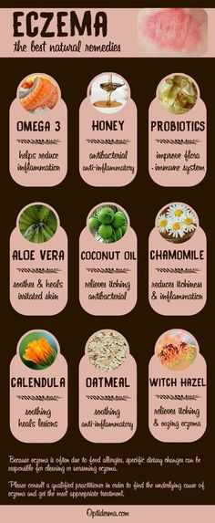 Here's a list of the best natural remedies for eczema: omega 3, honey, probiotics, aloe vera, coconut oil, chamomile, calendula, oatmeal, witch hazel. Which one to try? Check this out: