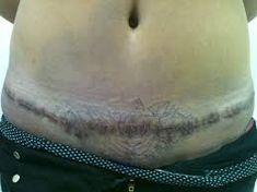 Resultado de imagem para tatuagem em cicatriz de abdominoplastia